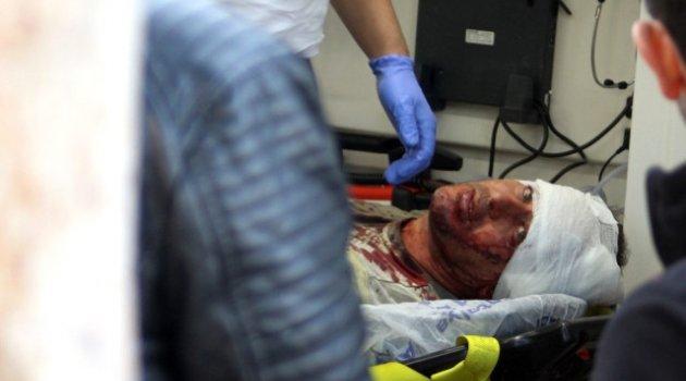 Antalya'da Sopalı, Silahlı Kavga: 3 Yaralı